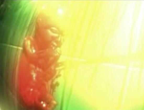 Foetus 2_000000